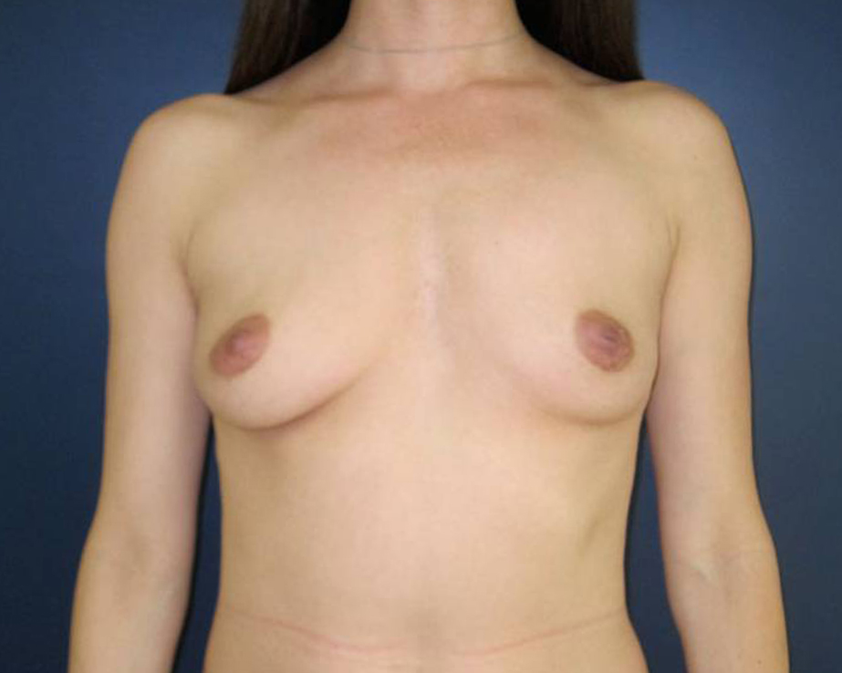 Breast Augmentation Gallery - Patient 4455182 - Image 5