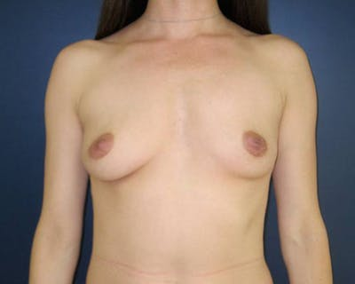 Breast Augmentation Gallery - Patient 4455182 - Image 1