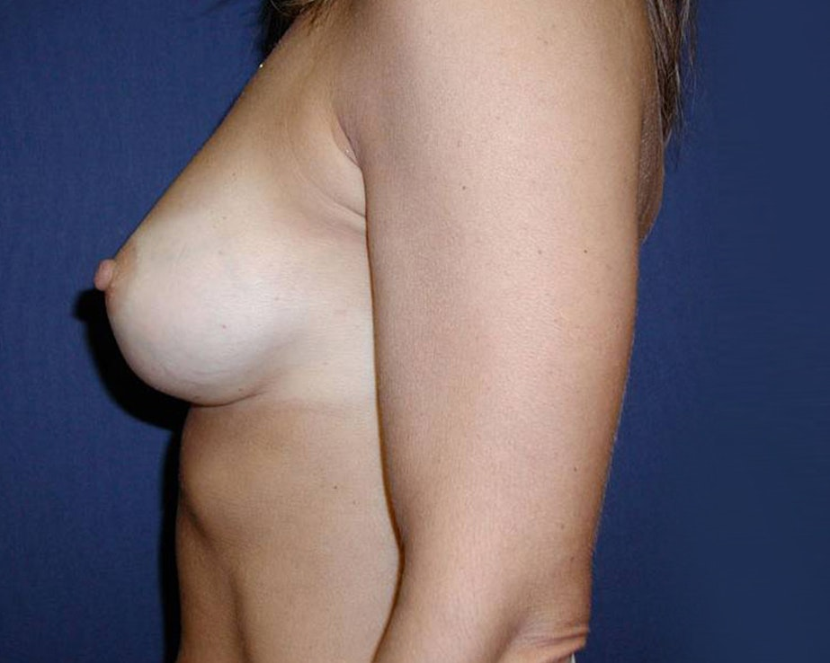 Breast Augmentation Gallery - Patient 4455256 - Image 4