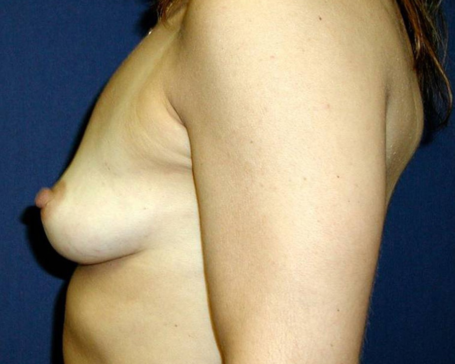 Breast Augmentation Gallery - Patient 4455256 - Image 3