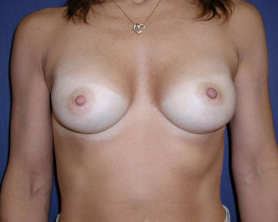 Breast Augmentation Gallery - Patient 4455256 - Image 2