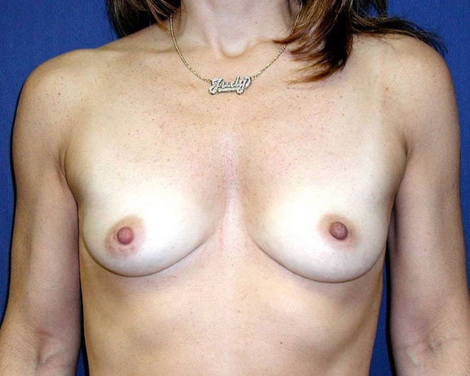 Breast Augmentation Gallery - Patient 4455256 - Image 1