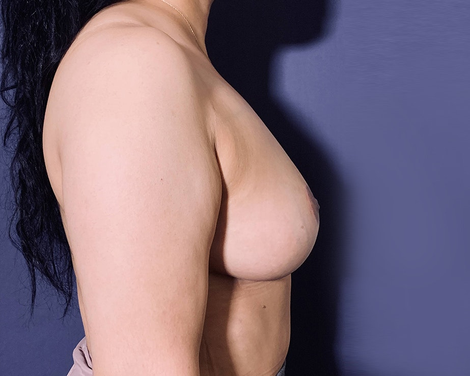 Breast Lift with Fat Grafting Gallery - Patient 4488534 - Image 3