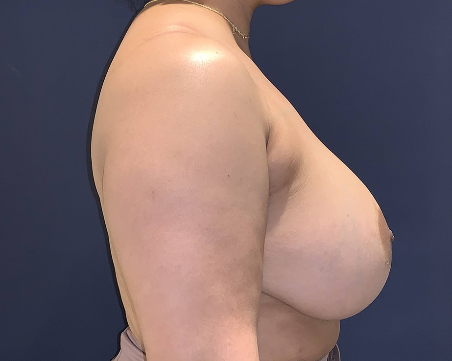Breast Lift with Fat Grafting Gallery - Patient 4488534 - Image 4