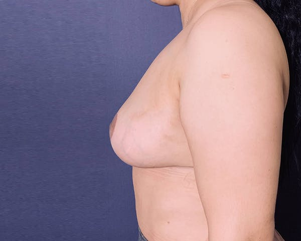 Breast Lift with Fat Grafting Gallery - Patient 4488534 - Image 5