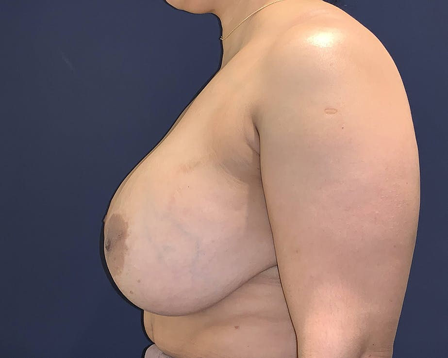 Breast Lift with Fat Grafting Gallery - Patient 4488534 - Image 6