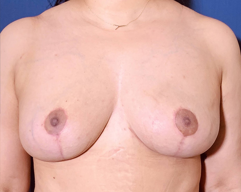 Breast Lift with Fat Grafting Gallery - Patient 4488534 - Image 2