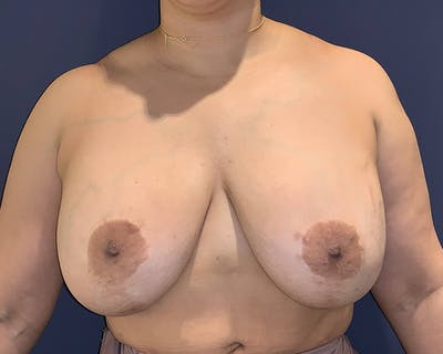 Breast Lift with Fat Grafting Gallery - Patient 4488534 - Image 1