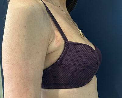 Breast Reconstructive Gallery - Patient 4488241 - Image 2