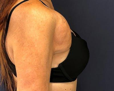 Breast Reconstructive Gallery - Patient 4488241 - Image 1