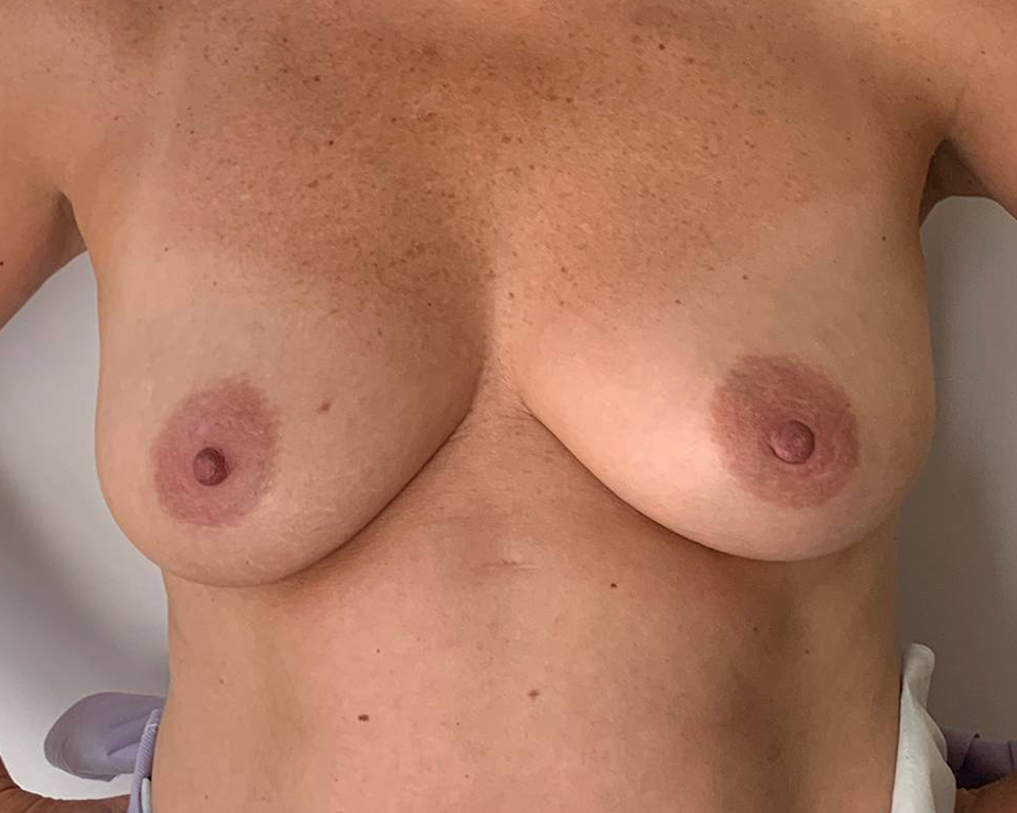 Breast Reconstructive Gallery - Patient 4488242 - Image 2