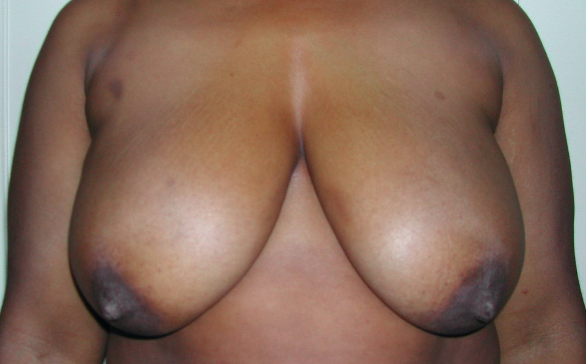 Breast Reduction Gallery - Patient 4488193 - Image 1
