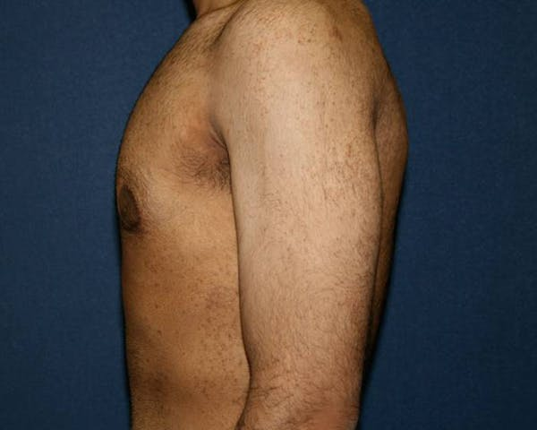 Gynecomastia (Male Breast Reduction) Gallery - Patient 4454712 - Image 4