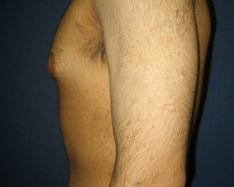 Gynecomastia (Male Breast Reduction) Gallery - Patient 4454712 - Image 3