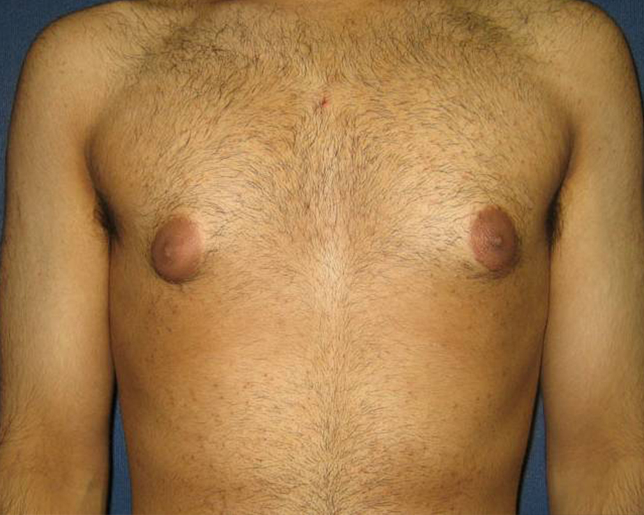 Gynecomastia (Male Breast Reduction) Gallery - Patient 4454712 - Image 2