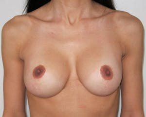 Breast Lift NYC Before and After