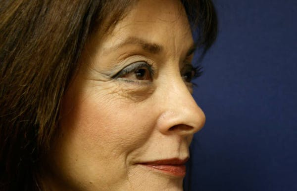 Blepharoplasty (Eyelid Surgery) Gallery - Patient 4447804 - Image 5