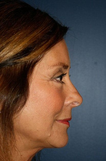 Blepharoplasty (Eyelid Surgery) Gallery - Patient 4447804 - Image 8