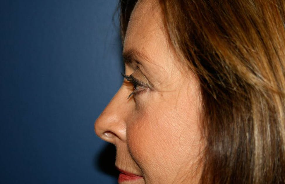 Blepharoplasty (Eyelid Surgery) Gallery - Patient 4447804 - Image 4