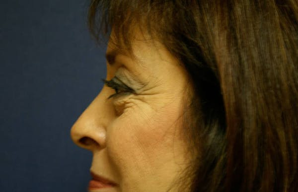 Blepharoplasty (Eyelid Surgery) Gallery - Patient 4447804 - Image 3