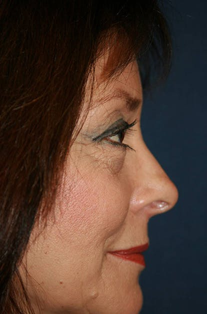 Blepharoplasty (Eyelid Surgery) Gallery - Patient 4447804 - Image 7