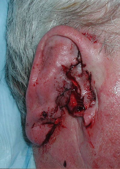 Ear Repair Gallery - Patient 4448187 - Image 1