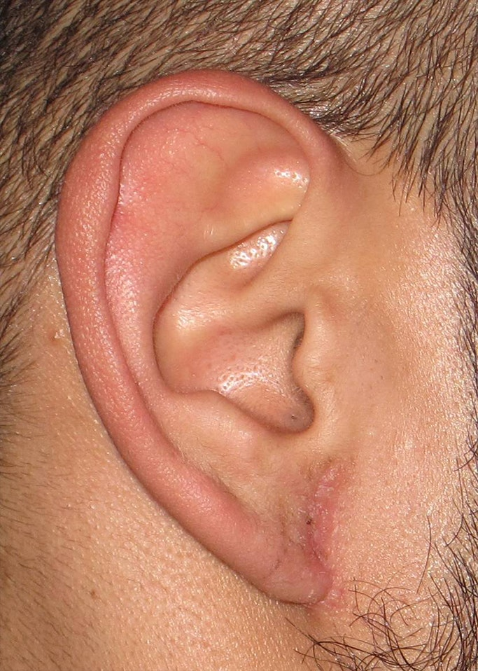 Ear Repair Gallery - Patient 4448264 - Image 4