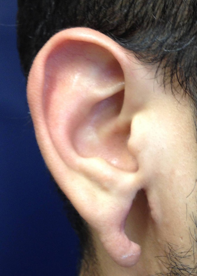 Ear Repair Gallery - Patient 4448264 - Image 3