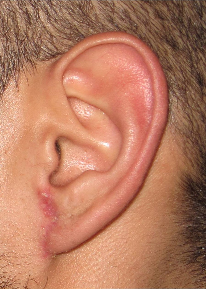 Ear Repair Gallery - Patient 4448264 - Image 2