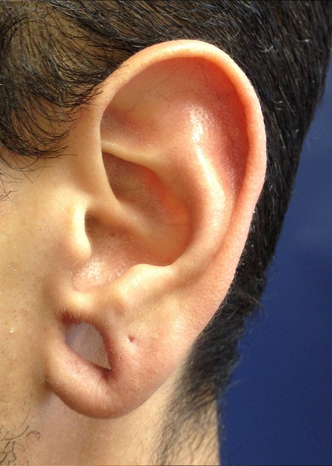 Ear Repair Gallery - Patient 4448264 - Image 1