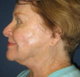Facelift Gallery - Patient 4447145 - Image 4