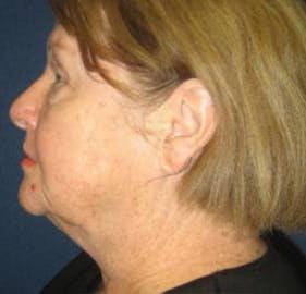 Facelift Gallery - Patient 4447145 - Image 3