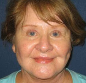 Facelift Gallery - Patient 4447145 - Image 2