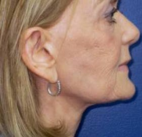 Facelift Gallery - Patient 4447225 - Image 2