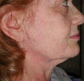 Facelift Gallery - Patient 4447225 - Image 1
