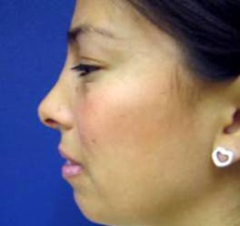 Rhinoplasty Gallery - Patient 4447364 - Image 4