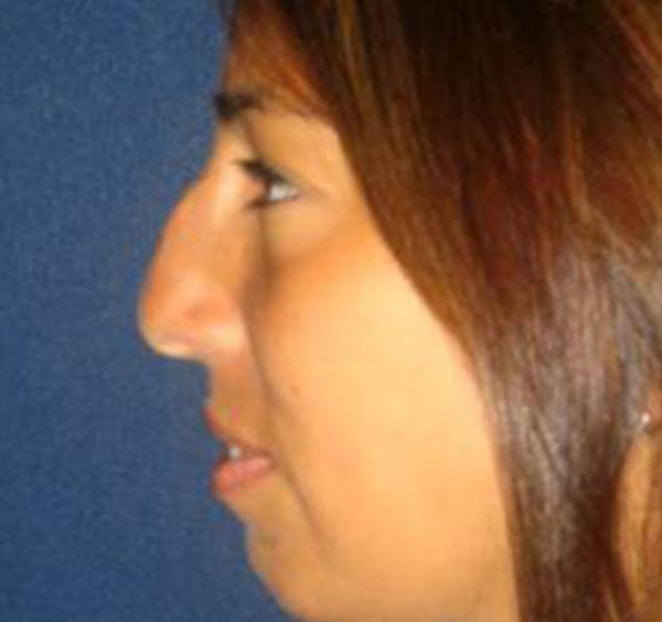 Rhinoplasty Gallery - Patient 4447364 - Image 3