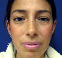 Rhinoplasty Gallery - Patient 4447364 - Image 2