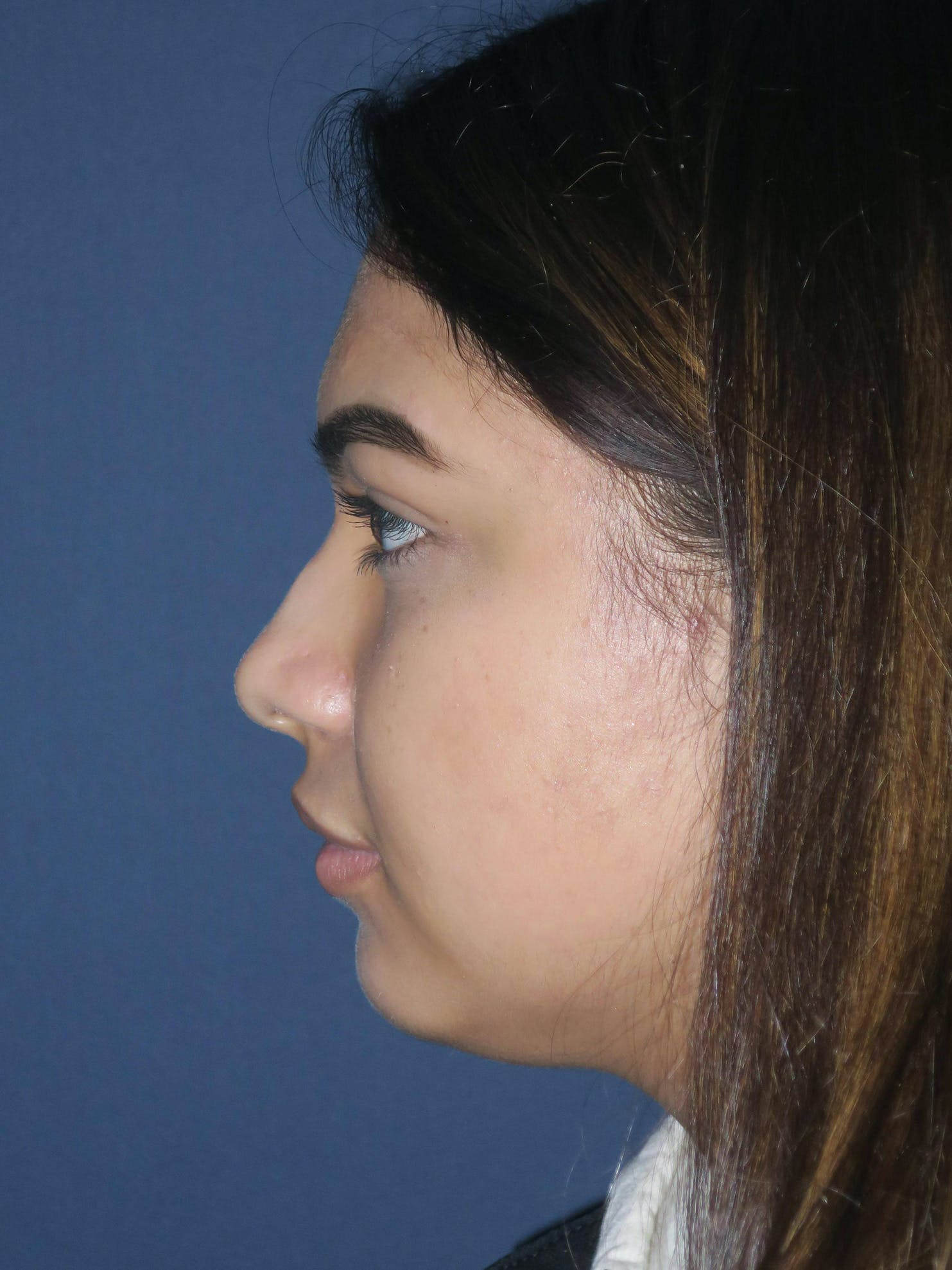 Rhinoplasty Gallery - Patient 4447369 - Image 3