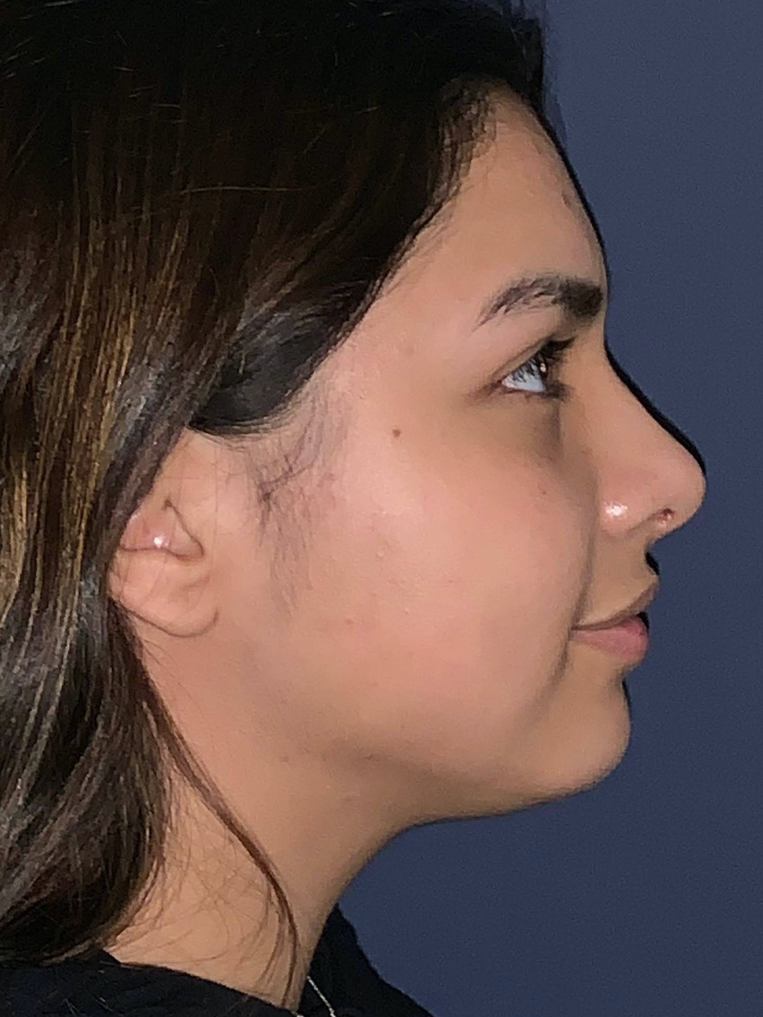 Rhinoplasty Gallery - Patient 4447369 - Image 8