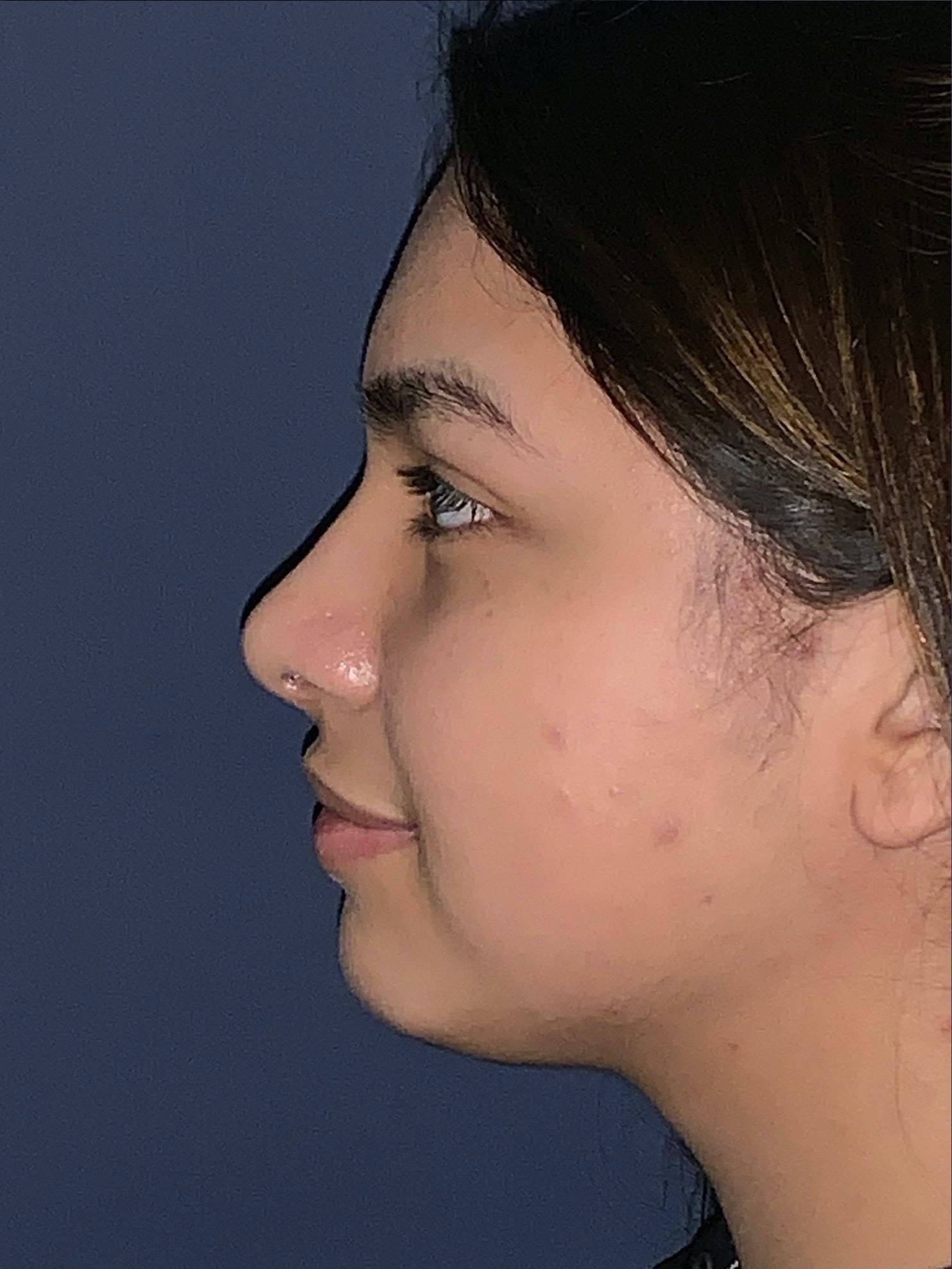 Rhinoplasty Gallery - Patient 4447369 - Image 4