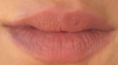 Lip Augmentation Gallery - Patient 4454372 - Image 1