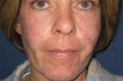 Scar Treatment Gallery - Patient 4452882 - Image 2