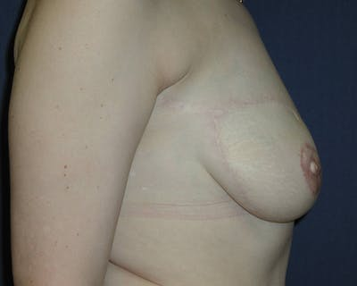 Breast Reconstruction Gallery - Patient 4488548 - Image 4