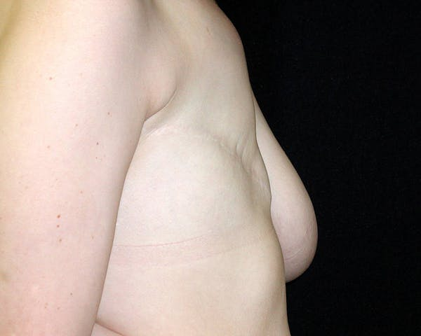 Breast Reconstruction Gallery - Patient 4488548 - Image 3