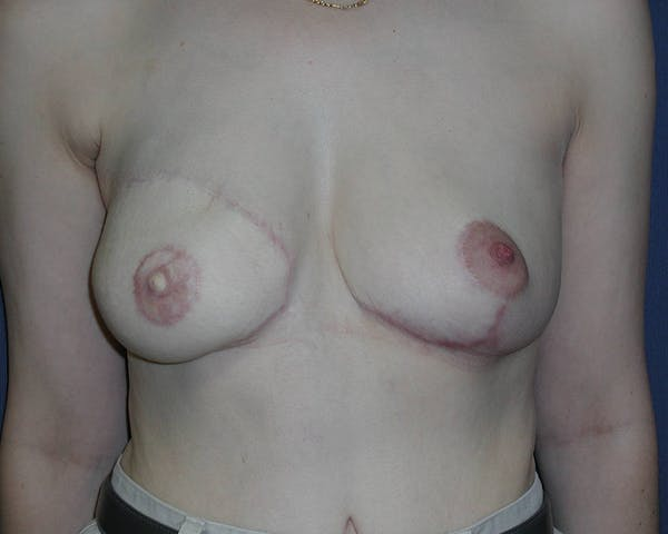 Breast Reconstruction Gallery - Patient 4488548 - Image 2