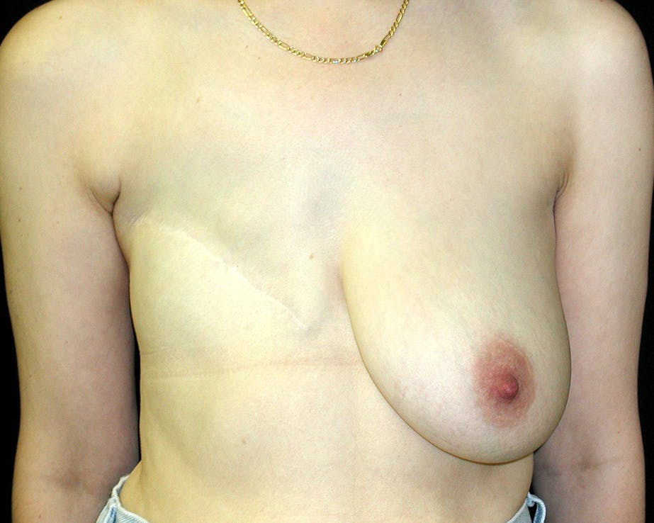 Breast Reconstruction Gallery - Patient 4488548 - Image 1