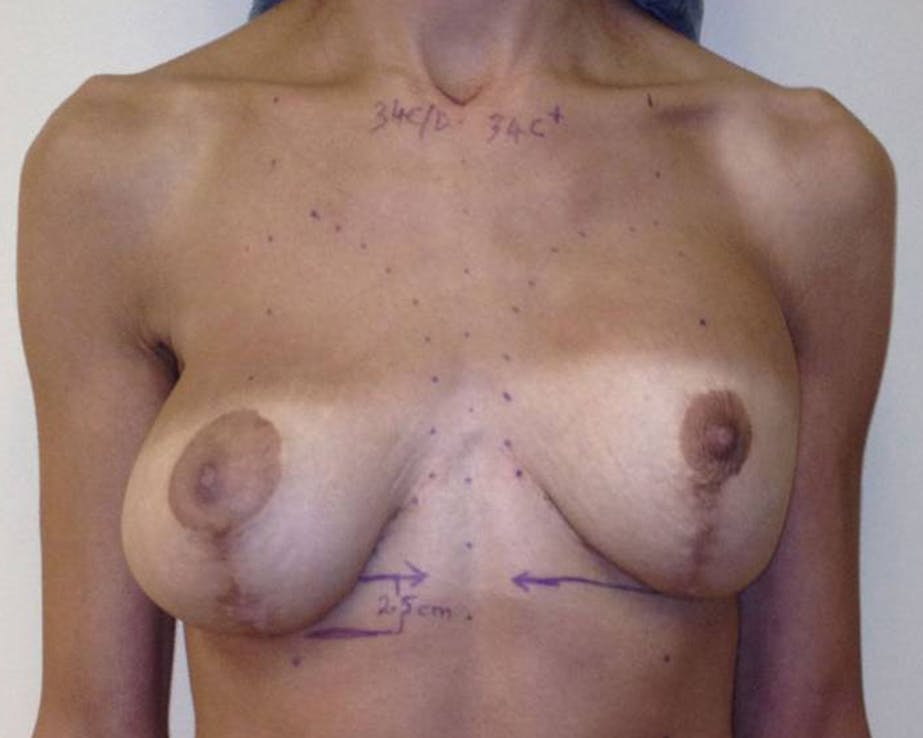 Re Operative Reconstruction Gallery - Patient 4488576 - Image 1