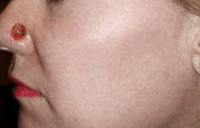 Skin Cancer Treatment Gallery - Patient 4488552 - Image 1