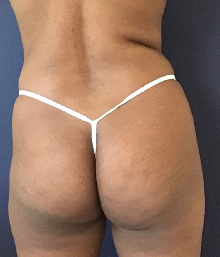 Brazilian Buttock Augmentation Gallery - Patient 13732967 - Image 1